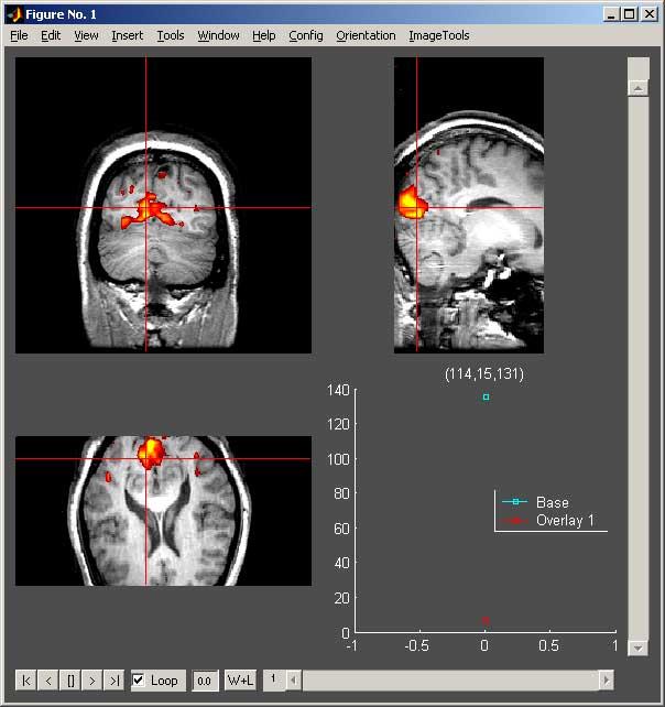 biac:matlab:orthoview jpg [Brain Imaging & Analysis Center]